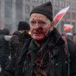 """Policja czy zwykli zbrodniarze? Marsz Niepodległości: 74-letni fotoreporter """"Tygodnika Solidarność"""" postrzelony"""